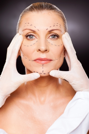beautician doing skin check to older woman before face lifting surgery photo