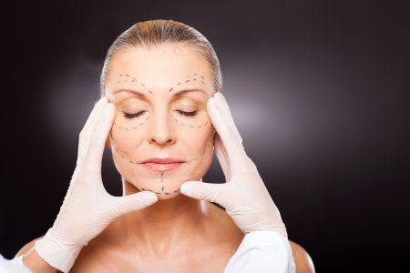 cosmetic surgery: plastic surgeon checking middle aged woman face before cosmetic surgery
