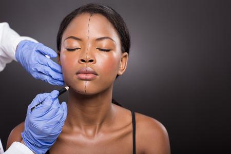 医者は化粧品の手術前に患者に訂正線を描画します。 写真素材