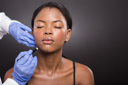 cosmetic surgery: doctor draw correction line on a patient before cosmetic surgery Stock Photo