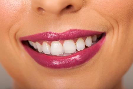 dientes sanos: Dientes de mujer sana y sonrisa