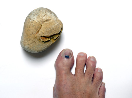 effusion: stone Westphalia on toe Stock Photo