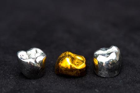 Tandgouden en metalen tandkransen op donker zwart oppervlak. Stockfoto