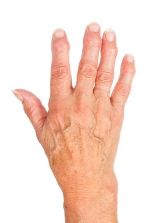 La main d'une vieille femme à l'arthrite, isolé sur blanc