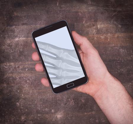 Smartphone affichage montrant une radiographie de la main tenant