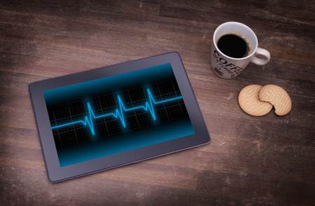 medical technical equipment: Electrocardiogram on a tablet - Concept of healthcare, heartbeat shown on monitor - blue