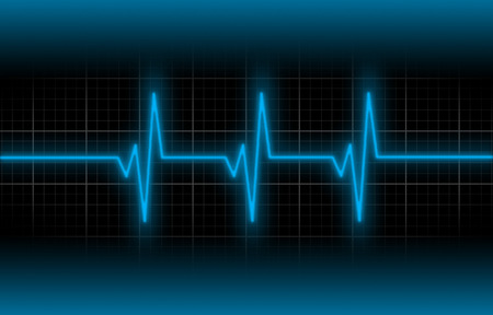 heart ecg trace: Electrocardiogram - Concept of healthcare, heartbeat shown on monitor - blue