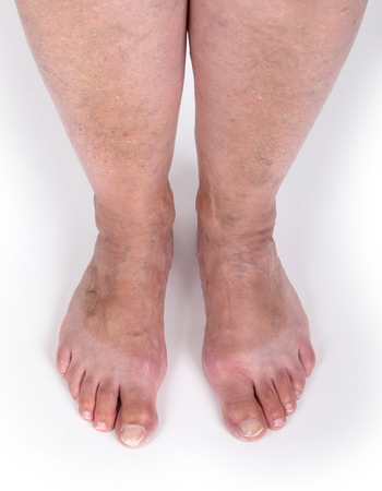 varicose: Old woman with varicose veins, isolated on white