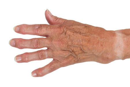 oldage: Hand of an old woman, close-up, isolated Stock Photo