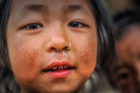 Dolpo, Nepal - circa May 2012: Small brown-eyed girl with piercing in her nose and dirt on cheeks in Dolpo, Nepal. Documentary editorial. Editorial