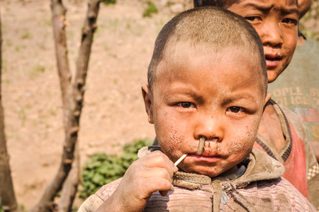 Dolpo, Nepal - circa May 2012: Young brown-eyed boy in brown clothes with dirt on his face has lollipop in his mouth in Dolpo, Nepal. Documentary editorial.
