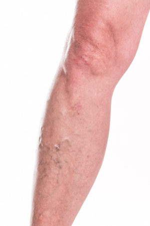 varicose veins: Varicose Veins on the legs of woman - studio shoot