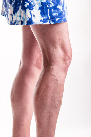 skin disease: Varicose Veins on the legs of woman - studio shoot