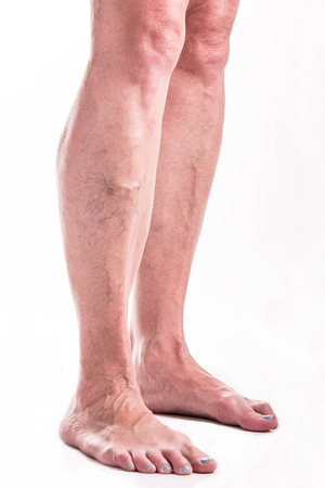 varicose veins: Varicose Veins on the legs of woman - studio shoot