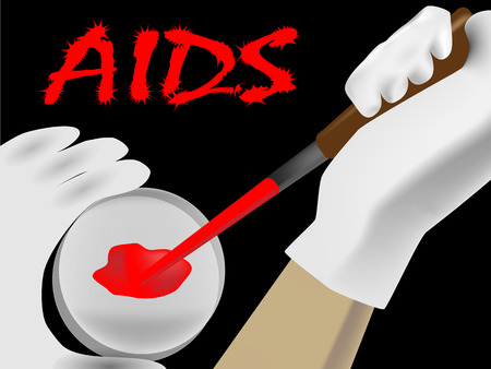 suspected: Laboratory analysis of a biological sample in suspected AIDS