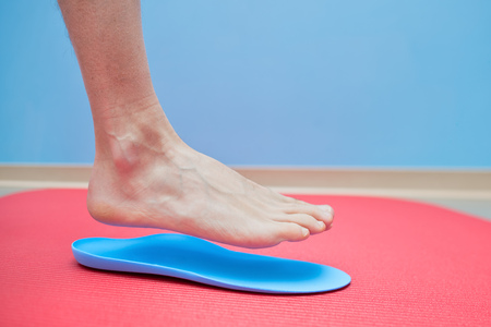 Foot on orthopedic insoles medical foot correction.