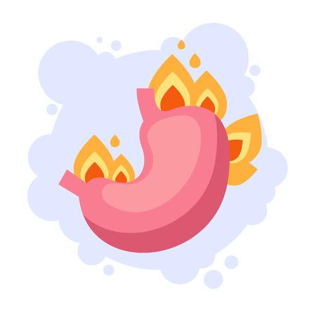 Burning isolated stomach. Heartburn concept. Vector flat cartoon graphic design illustration Иллюстрация