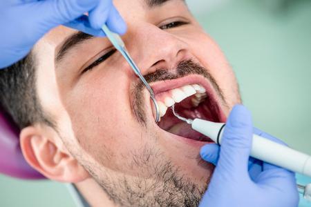 placa bacteriana: eliminación de la placa, el cuidado dental Foto de archivo