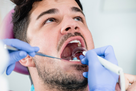 dental calculus: Young man having teeth professionally cleaned