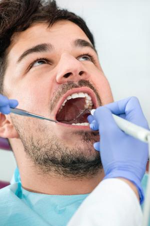 dental calculus: Dental plaque removal at dentist