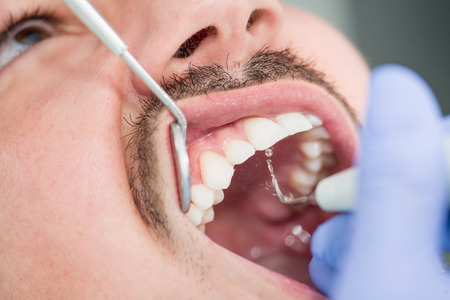 dental calculus: Removing plaque in dentist office Stock Photo