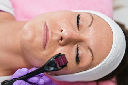 Dermaroller treatment in beauty salon