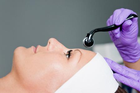 la terapia de inducción de colágeno en el salón de belleza