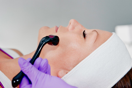 treating: Collagen induction - Treating face with dermaroller Stock Photo