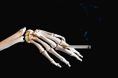 skeleton hand: Smoking kills - skeleton hand holding a cigarette