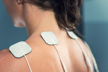 TENS electrodes - treatment on shoulders 版權商用圖片