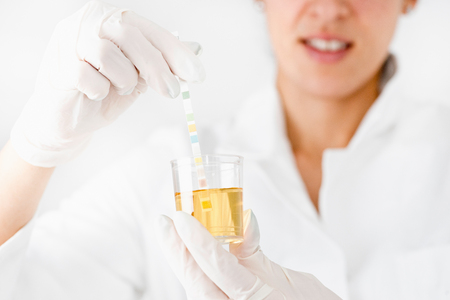 Female lab technician testing urine sample. Plastic container and test strip in focus. Stock Photo
