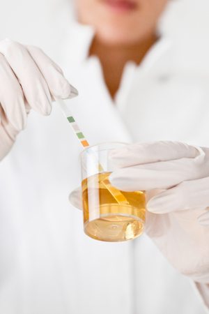 sample: Testing urine sample