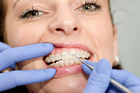 Orthodontist tightening invisible ceramic braces in dentist office Stock Photo