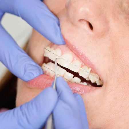 tightening: Orthodontist tightening invisible ceramic braces