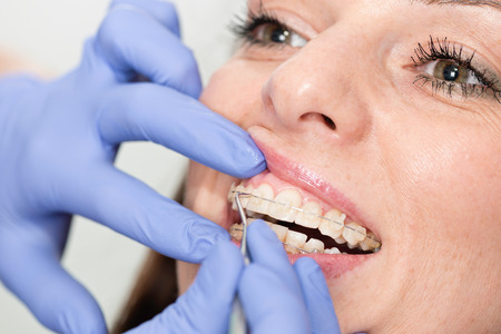 Orthodontist adjucting invisible dental braces