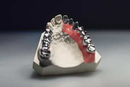 anatomical model: Denture model