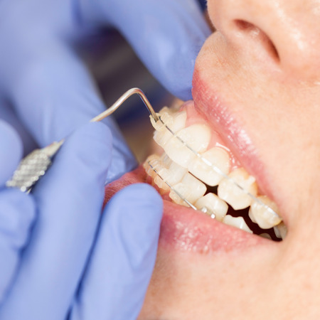 orthodontist: Orthodontist working with invisible ceramic braces. Close-up