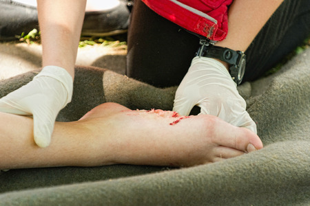 addressing: Paramedic addressing injured foot after accident. Simulated exercise, medical make-up, fake blood