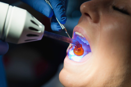 curing: Dental curing light Stock Photo