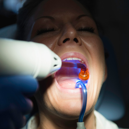 curing: Dentist using curing light