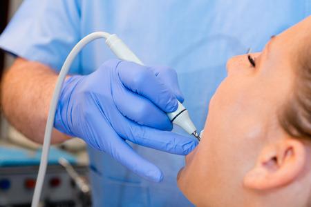 dental calculus: Dentist removing tartar