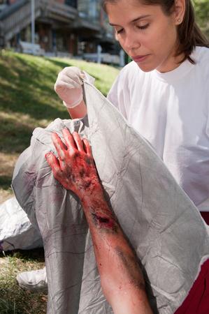 救急救命士第三度熱傷の犠牲者を扱います。模擬練習、プロ SFX メイク。