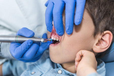 dental calculus: Dentist Removing Dental Calculus to Little Boy