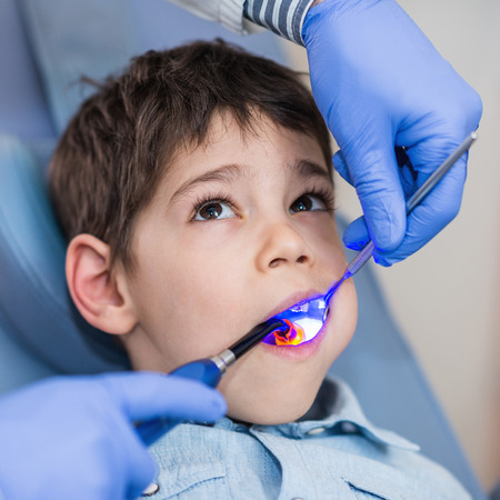 dental calculus: Dentist drying of the dental filling boys tooth