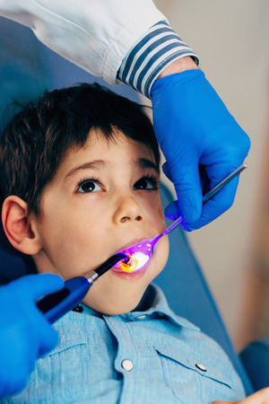 males only: Dentist drying of the dental filling boys tooth