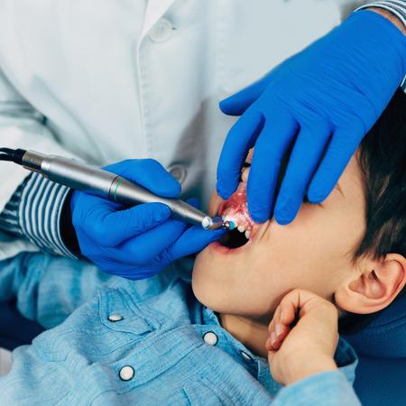 dental calculus: Dentist Removing Dental Calculus to Little Boy