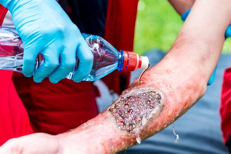 El trabajador médico el tratamiento de quemaduras en la mano del varón. tratamiento de primeros auxilios al aire libre. la práctica de primeros auxilios Foto de archivo