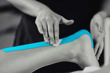 Black and white image of kinesiology taping treatment with blue tape on female patient injured achilles tendon. Sports injury kinesio treatment.