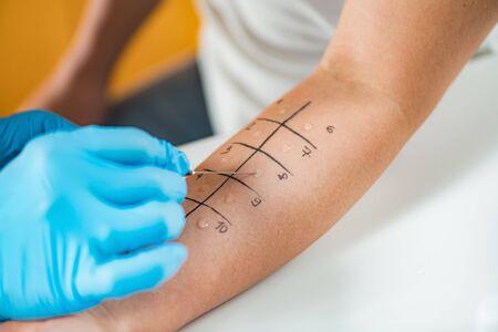 Inmunólogo realizando una prueba de alergia por punción cutánea en el brazo de una mujer Foto de archivo