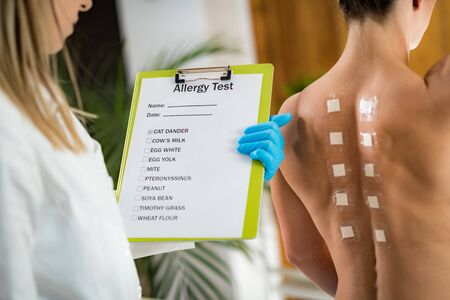 Immunologist Doing Skin Prick Allergy Test on a Woman's Back
